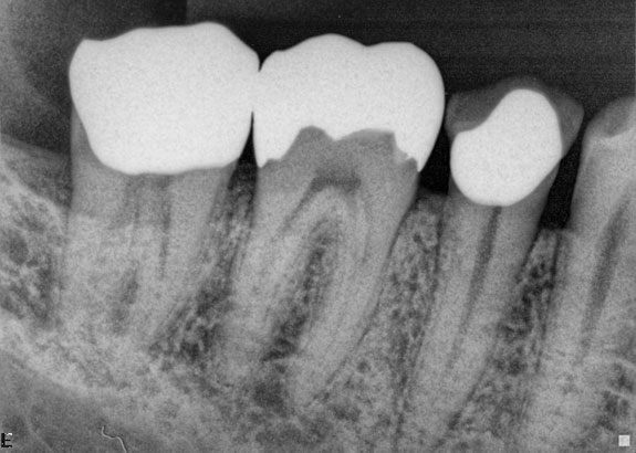 xray of front teeth - photo #32