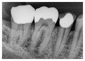 Digital xrays mean less radiation and a clearer image of your root canal.